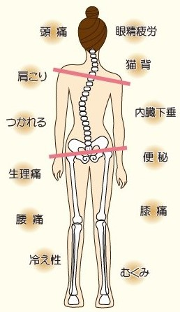 骨盤の歪みからくる症状