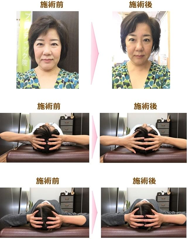スッキリ美顔整顔スクール受講生の施術例