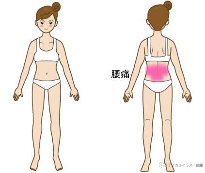 症例報告ー腰痛